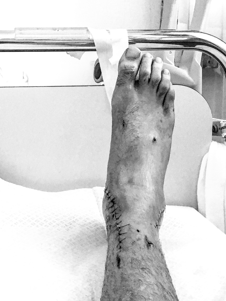 Dominik Raab Road to Recovery Foot after Surgery